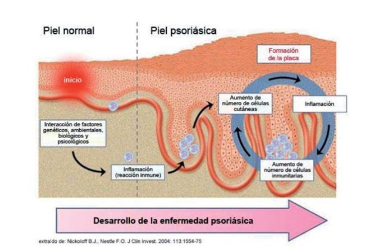 Desarrollo de la Psoriasis