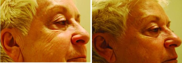 Efectos mejora terapia con luz roja para la piel