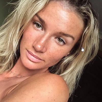 Amy Pejkovic despues tratamiento anti acne luz azul