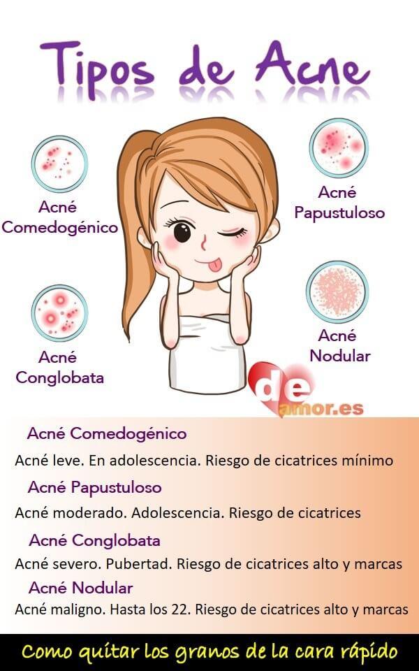 Tipos de acne según la severidad - Como quitar los granos de la cara