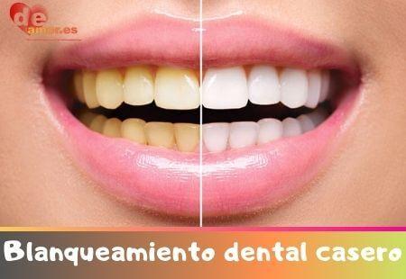 blanqueamiento dental casero facil y economico