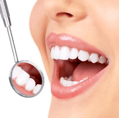 sonrisa con blanqueamiento dental