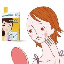 Mejores parches anti acné de Internet